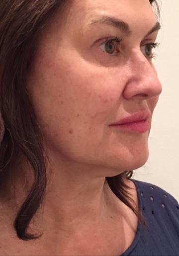 Fotona4D non-invasive laser facelift | Beauty & Medicine